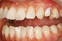 implant2-4