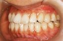implant2-5