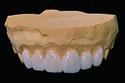 削らないラミネートべニア仮歯